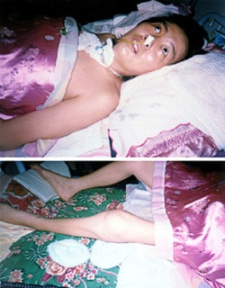 35-year-old Ms. Li Huiqi was tortured for two months in a Chinese Labor Camp, leaving her paralyzed and emaciated.
