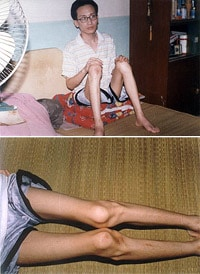 The above photos of Xu Song were taken in June 2001, shortly after his release from a forced labor camp. (full story)