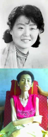 Wei Fengju before being tortured (top), and on July 11, 2007, the day before she passed away (above).