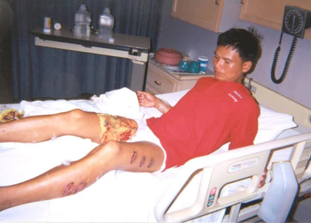 "On June 2nd, 2001, three labor camp guards tried to force Tan Yongji (above) to sign a ""repentance statement"" renouncing Falun Gong. When he refused, the guards tied him to a post, heated an iron rod in a furnace until it glowed red, and began applying it to his legs. The pain was so excruciating that Tan lost control of his bowel and bladder functions. The guards pressed the rod on his legs 13 times, spacing them out at regular intervals on his flesh, asking him all the while if he would renounce his belief in Falun Gong."