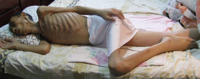 An emaciated Mr. Lu Yunlai shortly after being released home from Baimiao labor camp