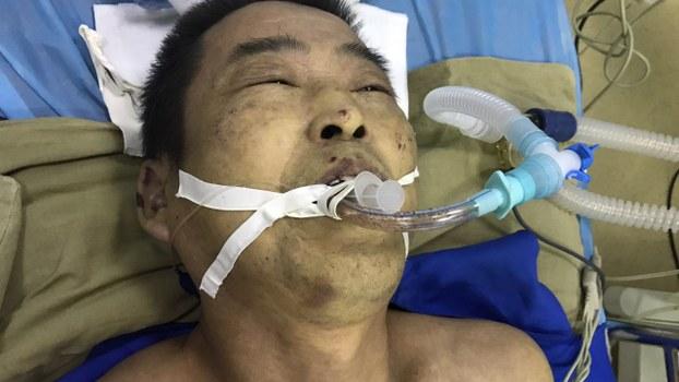 Mr. Yang Yuyong in hospital following torture in custody (Radio Free Asia)