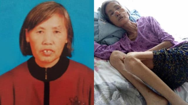 Ms. Zhao before her last arrest and after her release from prison, severely emaciated and missing a front tooth that was knocked out while being force-fed unknown drugs.